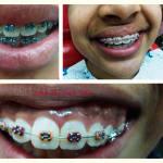 Smile On Dental Clinic Image 2