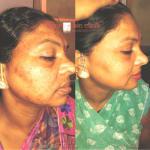 Ayur skin clinic Image 3