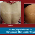 HomeoCure™ Homeopathy Clinic, Tilak Road Image 9
