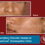 HomeoCure™ Homeopathy Clinic, Tilak Road Image 10