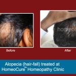 HomeoCure™ Homeopathy Clinic, Tilak Road Image 8