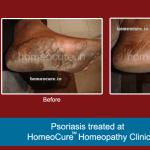 HomeoCure™ Homeopathy Clinic, Tilak Road Image 7