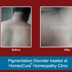 HomeoCure™ Homeopathy Clinic, Tilak Road Image 6