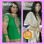 Diet Clinic  - Shahibaug - Ahmedabad Image 7