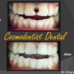 Cosmodontist Dental & Implant Centre Image 3