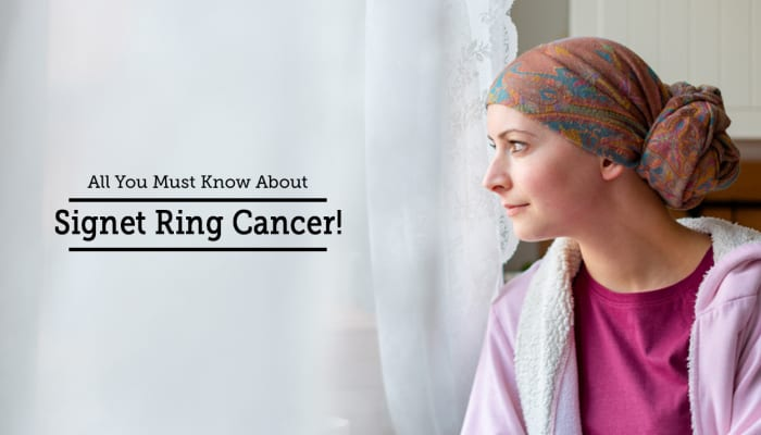 All You Must Know About Signet Ring Cancer!
