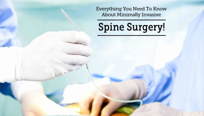 Everything You Need To Know About Minimally Invasive Spine Surgery!