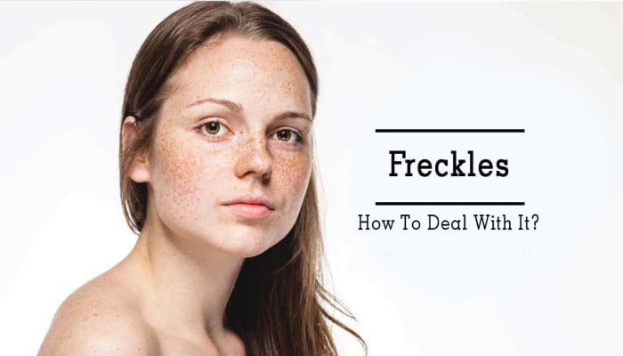 Freckles - How To Deal With It?