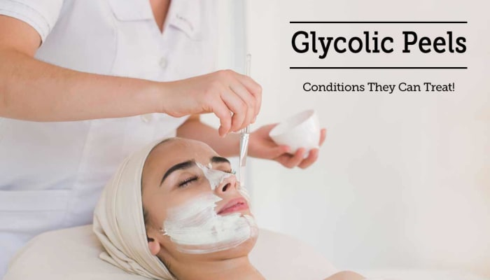 Glycolic Peels - Conditions They Can Treat!