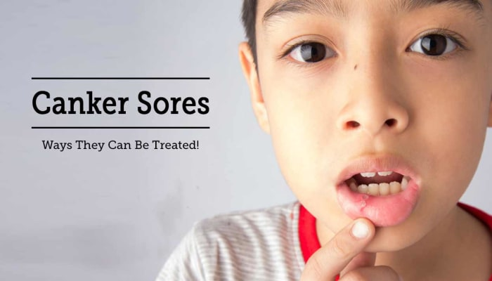 Canker Sores - Ways They Can Be Treated!