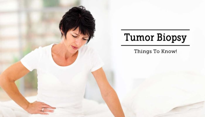 Tumor Biopsy: Things To Know!