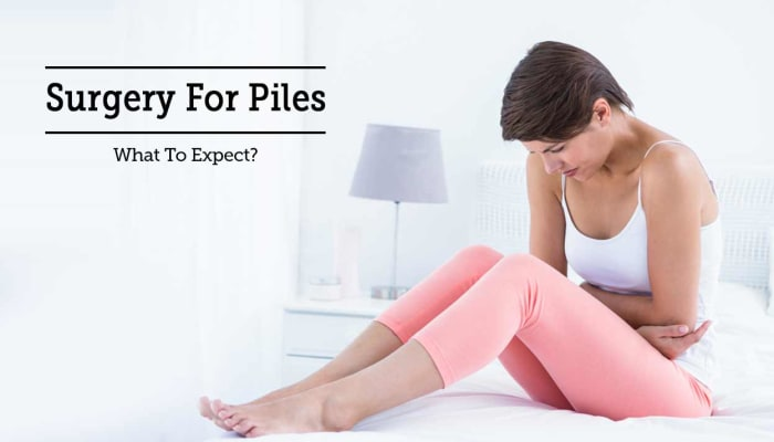 Surgery For Piles - What To Expect?