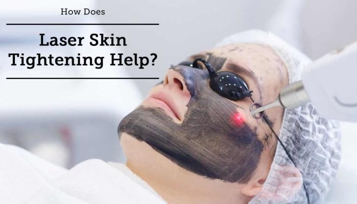 How Does Laser Skin Tightening Help?
