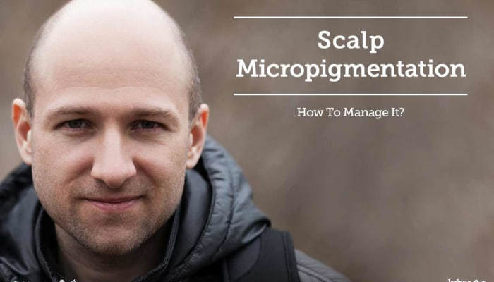 Scalp Micropigmentation - How To Manage It?