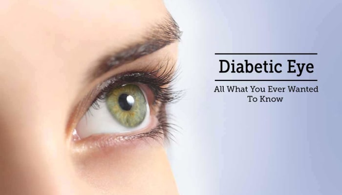 Diabetic Eye - All What You Ever Wanted To Know