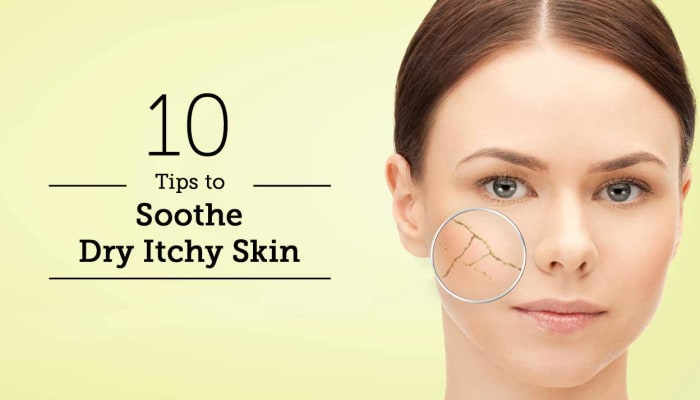 10 Tips To Soothe Dry Itchy Skin