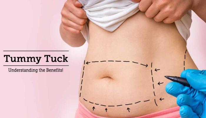 Tummy Tuck -  Understanding the Benefits!