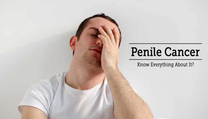 Penile Cancer - Know Everything About It!