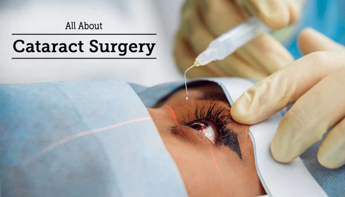 All About Cataract Surgery