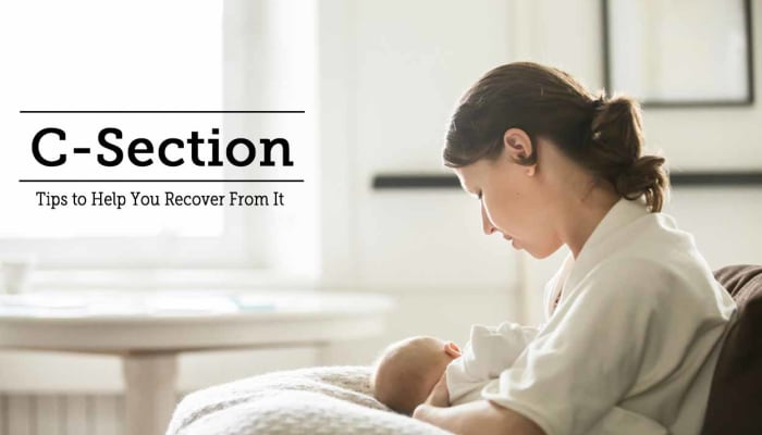 C-Section - Tips to Help You Recover From It