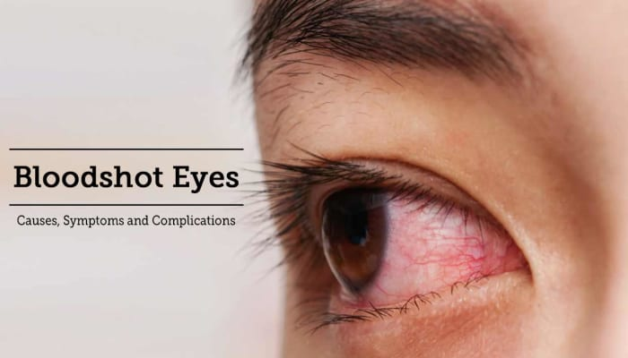 Bloodshot Eyes - Causes, Symptoms and Complications