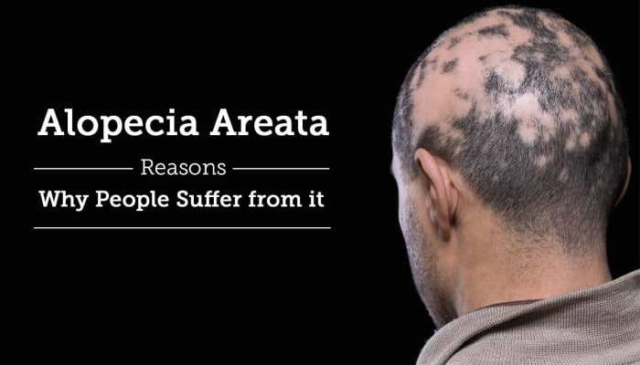 Alopecia Areata - Reasons Why People Suffer from it