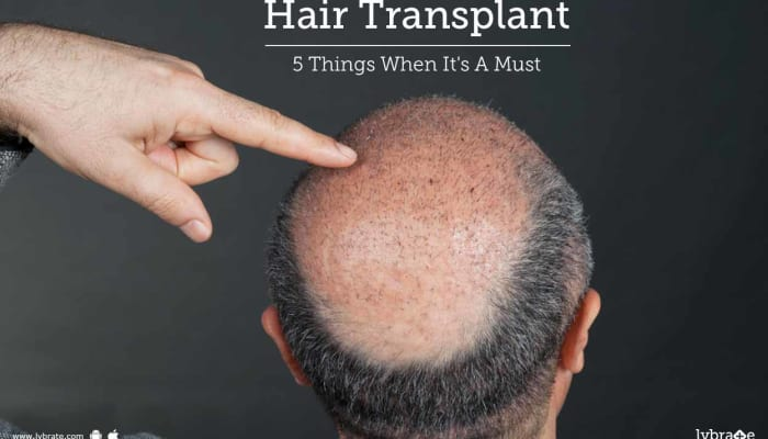 Hair Transplant- 5 Things When It's A Must