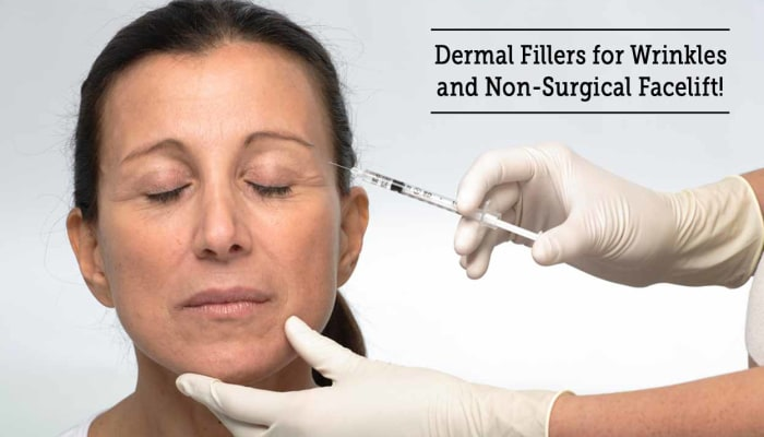 Dermal Fillers for Wrinkles and Non-Surgical Facelift!