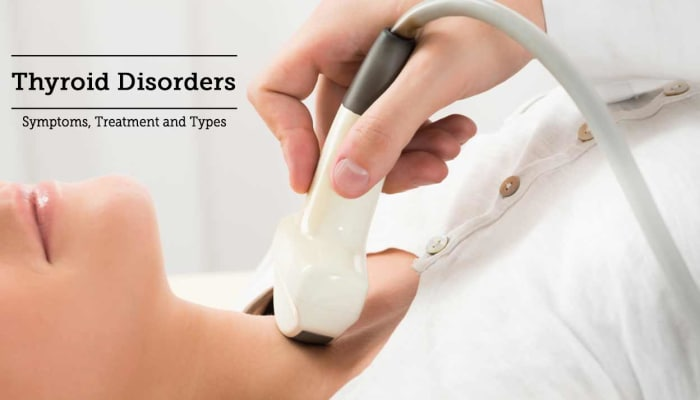 Thyroid Disorders: Symptoms, Treatment and Types