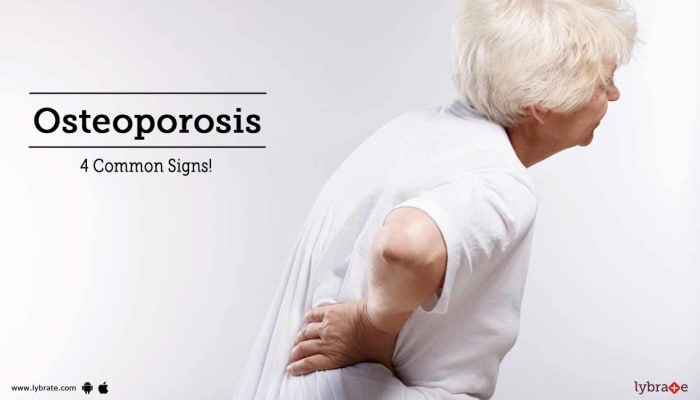 Osteoporosis - 4 Common Signs!