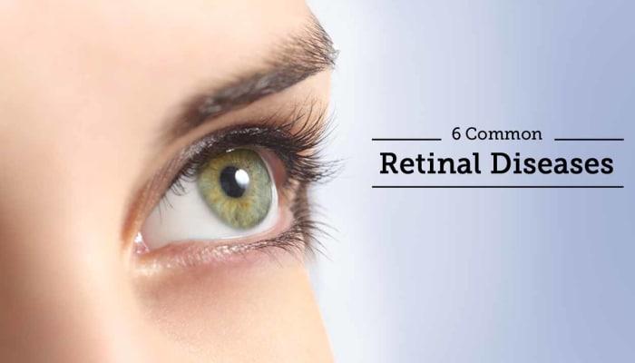 6 Common Retinal Diseases