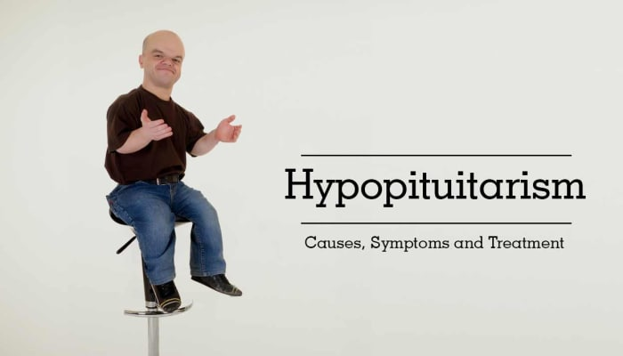 Hypopituitarism: Causes, Symptoms and Treatment