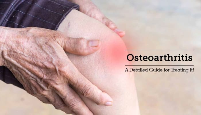 Osteoarthritis - A Detailed Guide for Treating it!