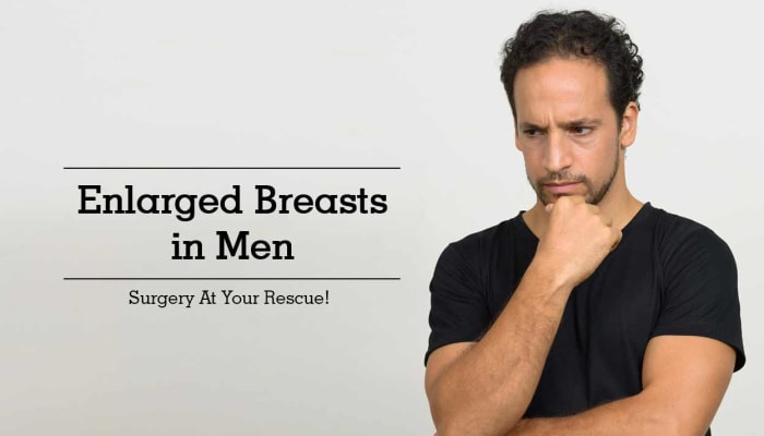 Enlarged Breasts In Men - Surgery At Your Rescue!