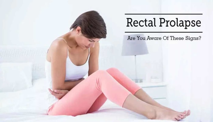 Rectal Prolapse - Are You Aware Of These Signs?