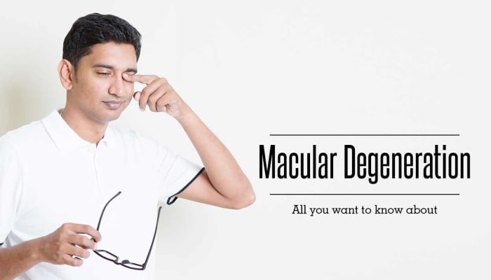 Macular Degeneration - All You Want to Know About