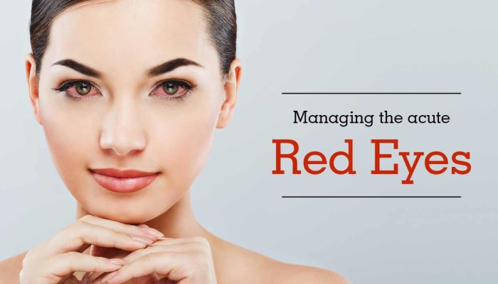 Managing the Acute Red Eye