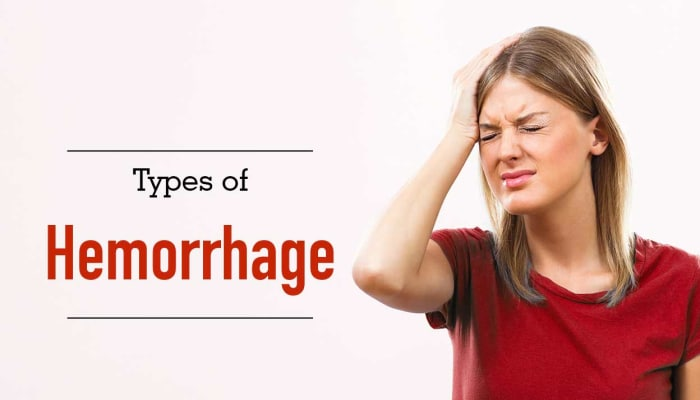Types of Hemorrhage