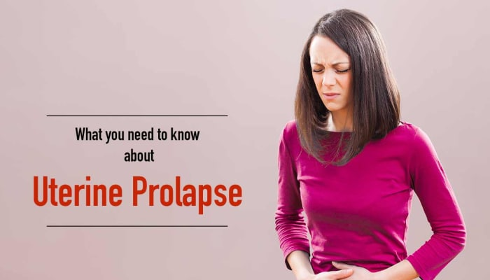 What You Need To Know About Uterine Prolapse