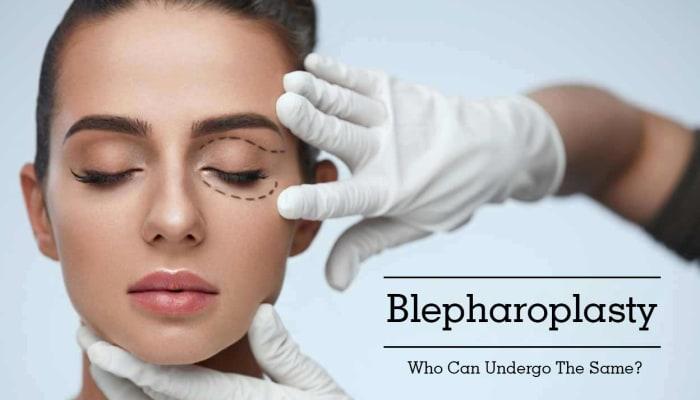 Blepharoplasty - Who Can Undergo The Same?