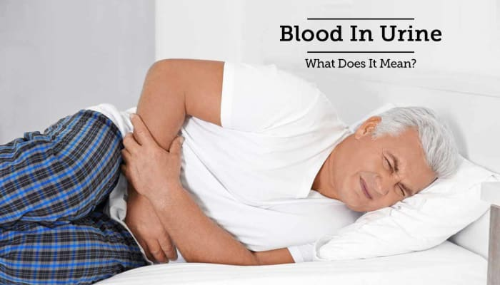 Blood In Urine - What Does It Mean?