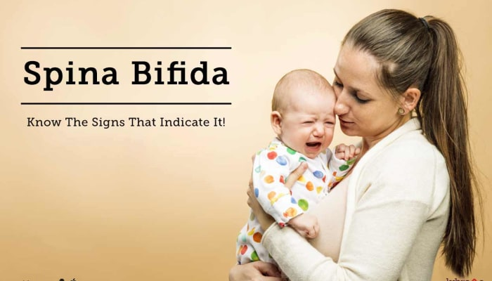 Spinal Bifida - Know The Signs That Indicate It!