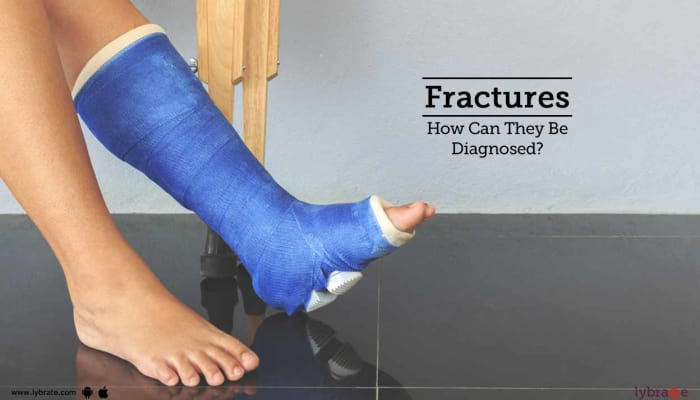 Fractures - How Can They Be Diagnosed?