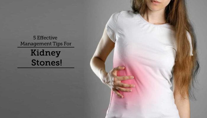5 Effective Management Tips For Kidney Stones!