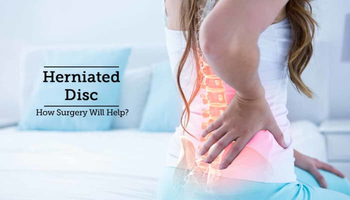 Herniated Disc - How Surgery Will Help?