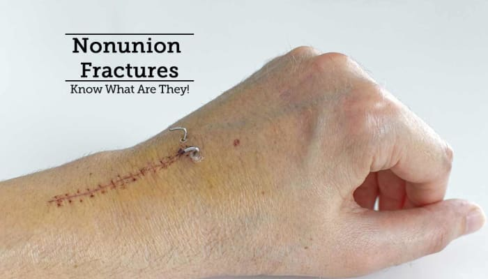 Nonunion Fractures - Know What Are They!