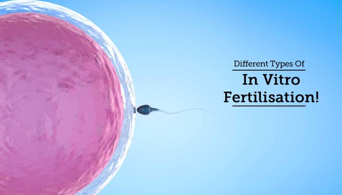 Different Types Of In-Vitro Fertilisation!
