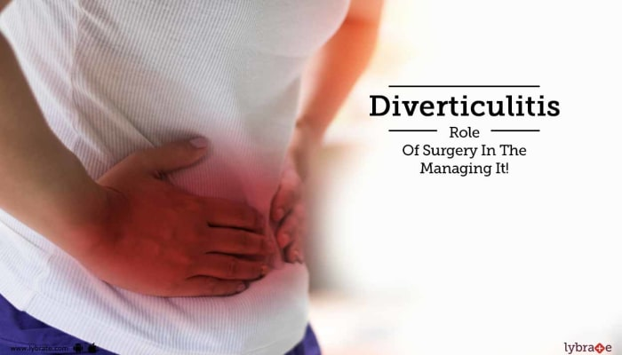 Diverticulitis - Role Of Surgery In The Managing It!