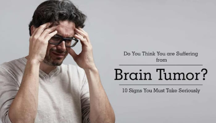 Do You Think You are Suffering from Brain Tumor? 10 Signs You Must Take Seriously