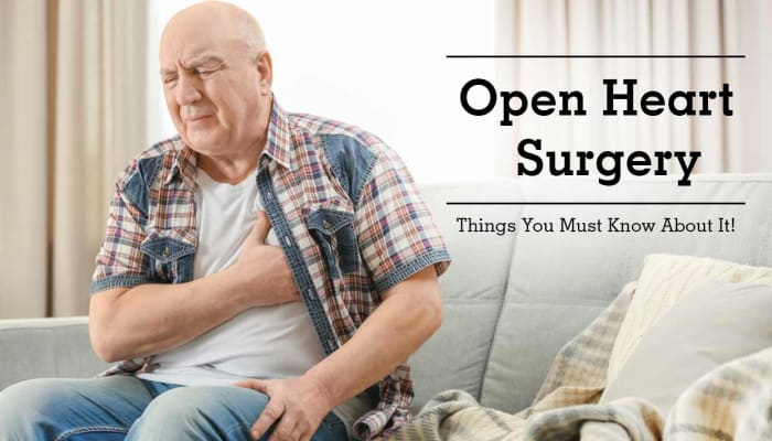 Open Heart Surgery - Things You Must Know About It!